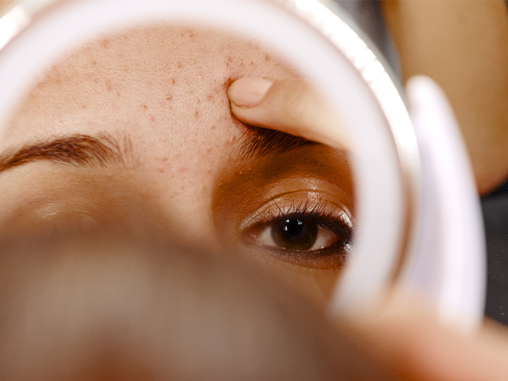 Things to Know About Small Blackheads