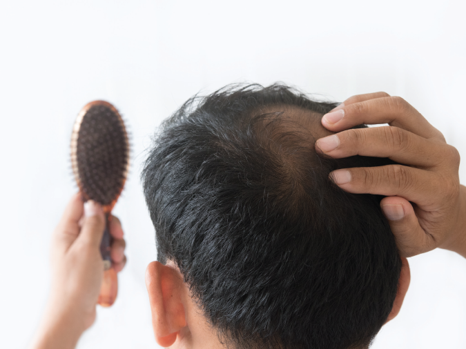 Folic Acid and Hair Loss - How Do They Relate?