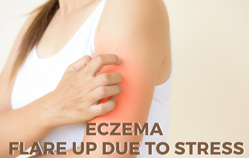 Eczema Flare Up Due to Stress - Things to Know | DIY Cosmetics